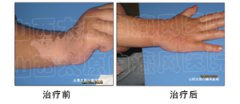 手腕上的白斑怎么治好得快